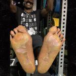Antonio Brown Foot Injury
